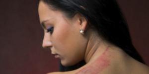 strangulation victim